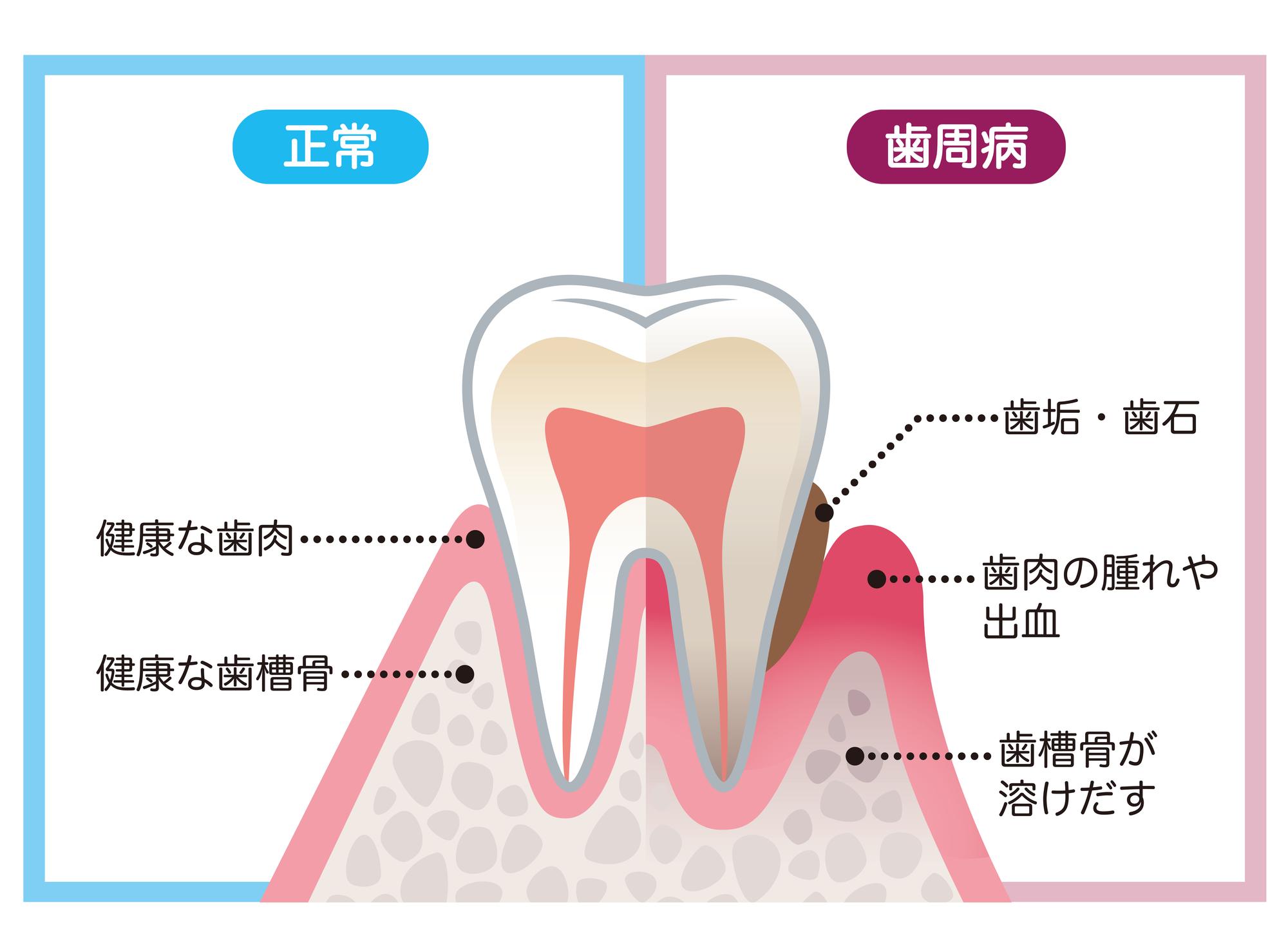 岡山県岡山市北区の歯医者 たんじフレンド歯科 歯周病