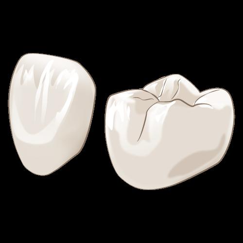 岡山県岡山市北区の歯医者 たんじフレンド歯科 審美治療 オールセラミック