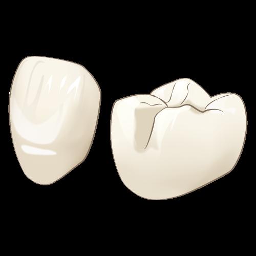 岡山県岡山市北区の歯医者 たんじフレンド歯科 審美治療 ハイブリッドレジン