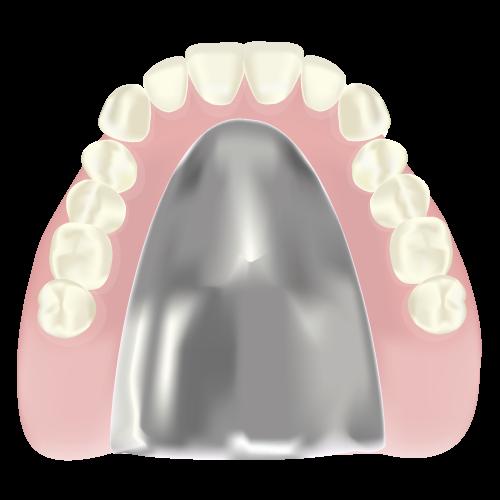岡山県岡山市北区の歯医者 たんじフレンド歯科 義歯・入れ歯 金属床義歯