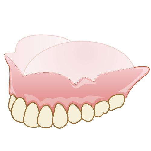 岡山県岡山市北区の歯医者 たんじフレンド歯科 義歯・入れ歯 コンフォート加工の入れ歯