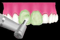 岡山県岡山市北区の歯医者 たんじフレンド歯科 PMTC 仕上げのフッ素コーティング