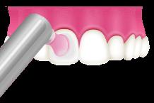 岡山県岡山市北区の歯医者 たんじフレンド歯科 PMTC 歯面の磨き上げ(ポリッシング)