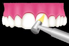 岡山県岡山市北区の歯医者 たんじフレンド歯科 PMTC 歯面と歯の隙間の清掃