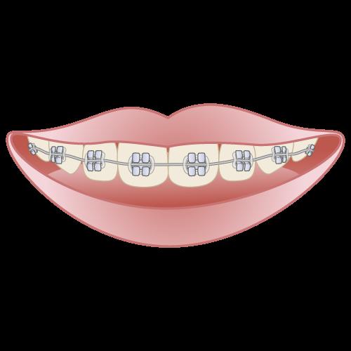 岡山県岡山市北区の歯医者 たんじフレンド歯科 矯正 メタルブラケット