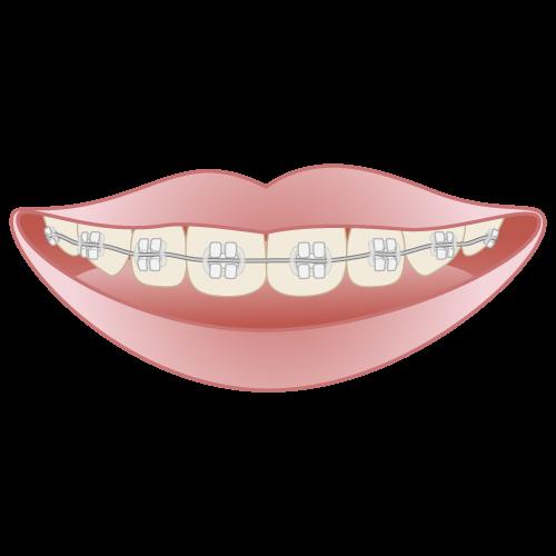 岡山県岡山市北区の歯医者 たんじフレンド歯科 矯正 セラミックブラケット