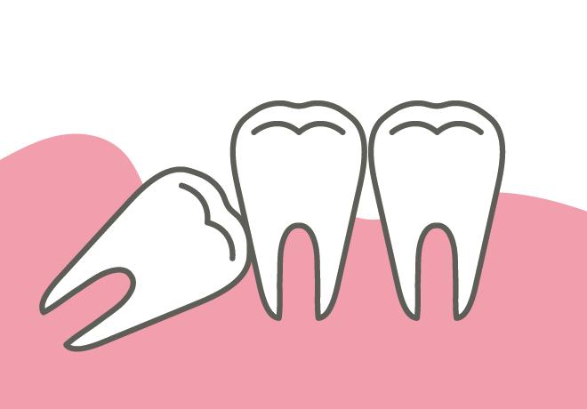 岡山県岡山市北区の歯医者 たんじフレンド歯科 親知らずの治療