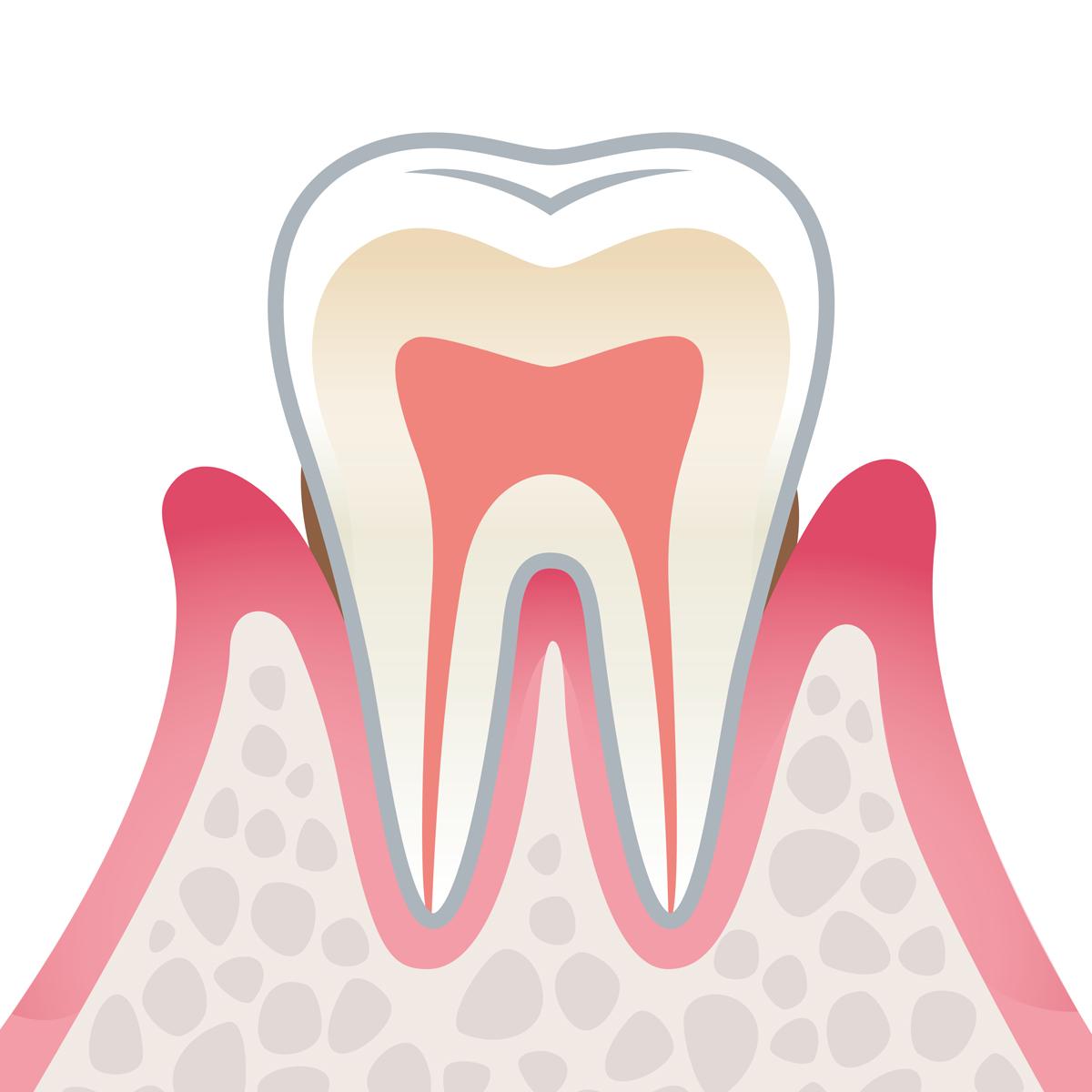 岡山県岡山市北区の歯医者 たんじフレンド歯科 歯周病 軽度歯周病