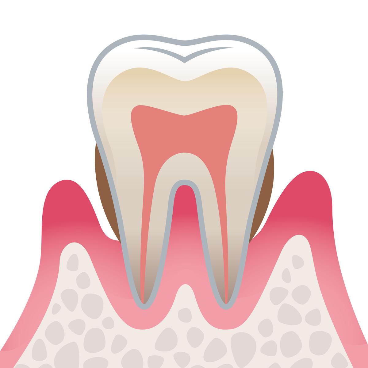 岡山県岡山市北区の歯医者 たんじフレンド歯科 歯周病 中度歯周病