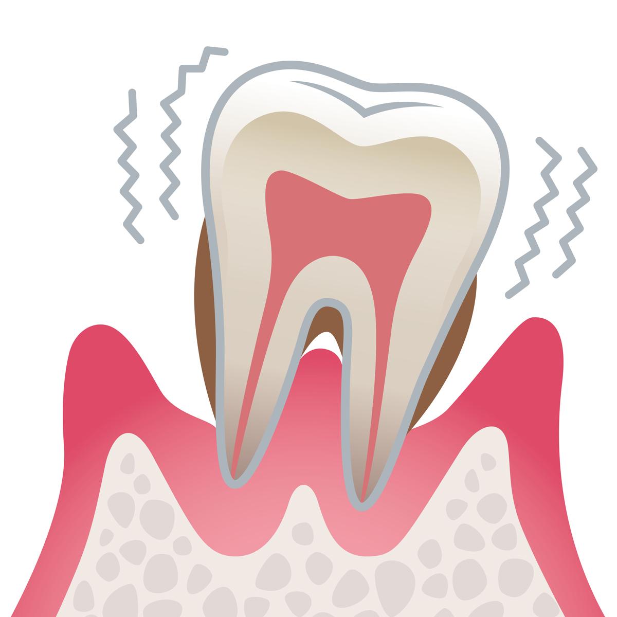 岡山県岡山市北区の歯医者 たんじフレンド歯科 歯周病 重度歯周病